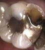 Fractured-tooth-restored-with-a-composite-restoration-Before-Image