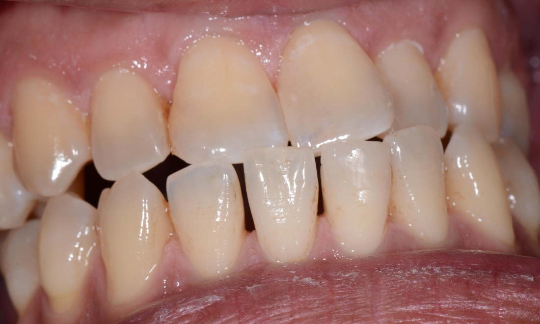 Single Appointment leads to healthy, beautiful teeth