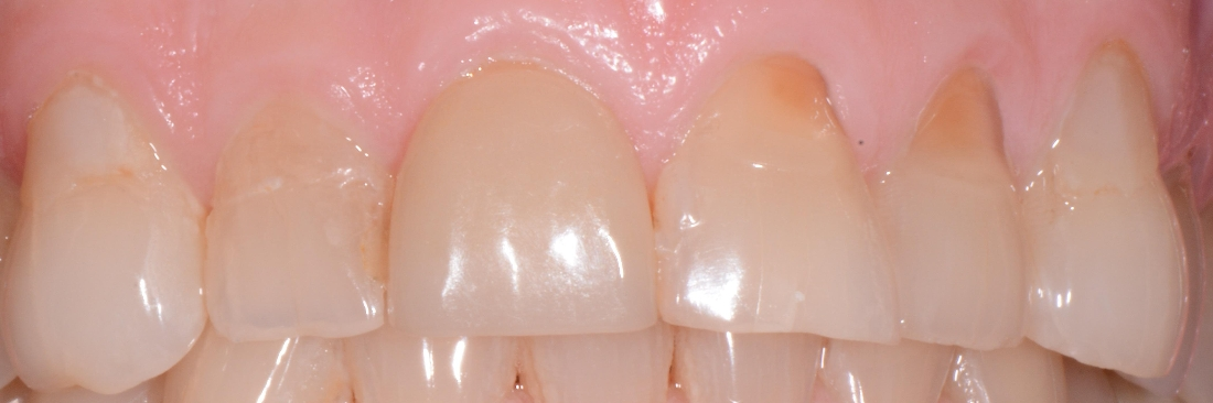 Worn teeth with old fillings and lost length