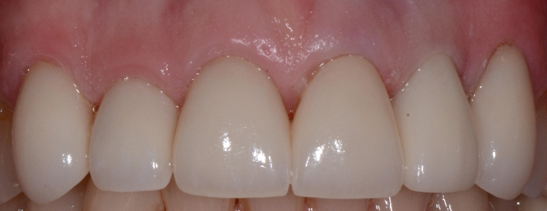 Restored to health and vitality with ceramic crowns