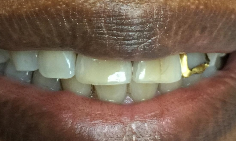 Gold-Crown-becomes-a-natural-tooth-Before-Image