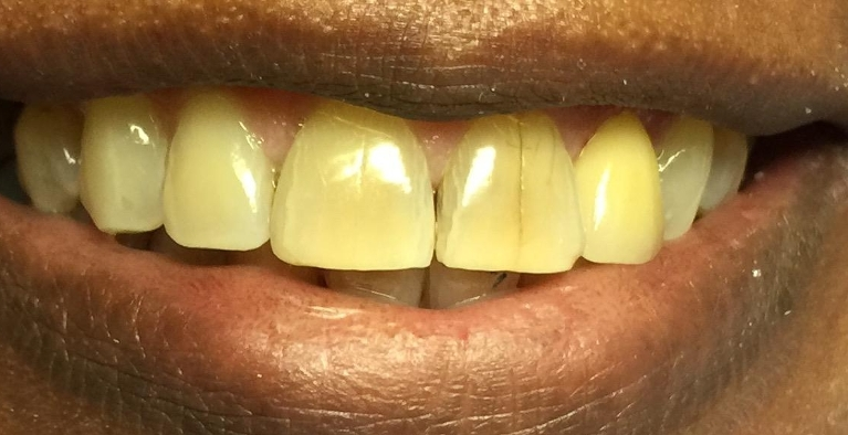 Gold-Crown-becomes-a-natural-tooth-After-Image
